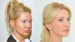 Foto – YES-Fadenlifting, Facelift – Lenka
